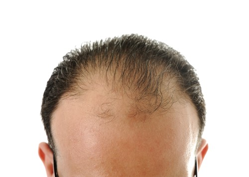 A Cure For Baldness Is Two Years Away
